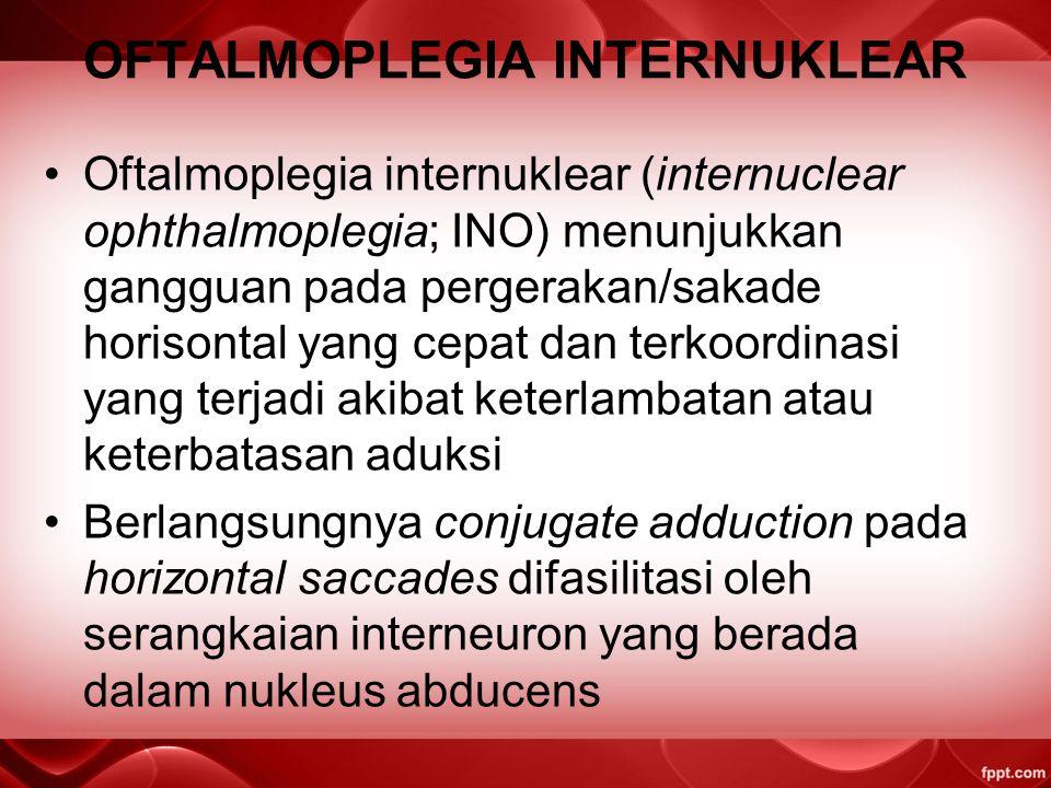OFTALMOPLEGIA INTERNUKLEAR Oftalmoplegia internuklear (internuclear ophthalmoplegia; INO) menunjukkan gangguan pada pergerakan/sakade horisontal yang cepat dan terkoordinasi yang terjadi akibat keterlambatan atau keterbatasan aduksi Berlangsungnya conjugate adduction pada horizontal saccades difasilitasi oleh serangkaian interneuron yang berada dalam nukleus abducens