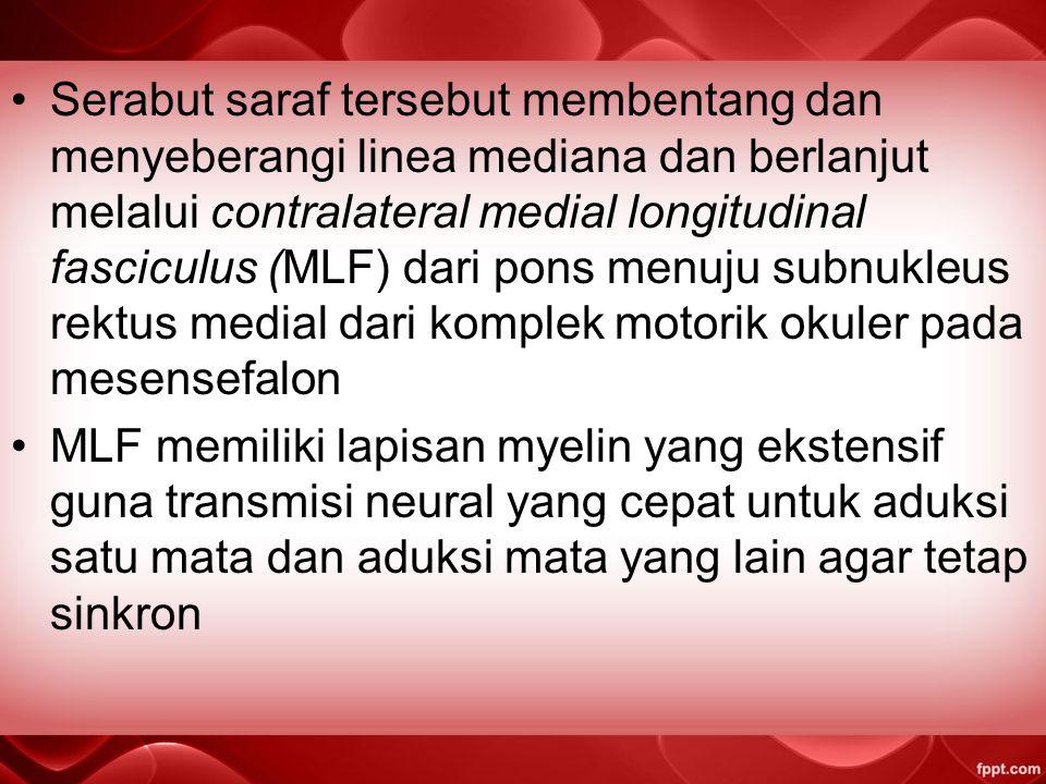 berlangsungnya gangguan pada kecepatan transmisi tersebut melalui MLF dapat mengakibatkan terjadinya gejala asinkron seperti terjadinya ocular misalignment selama berlangsungnya horizontal saccades Defisit aduksi pada kasus INO dapat termanifestasi sebagai keterlambatan selama berlangsungnya horizontal duction