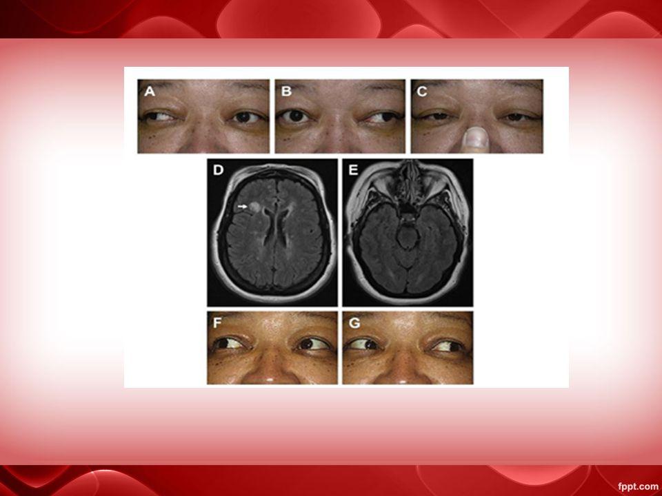 Sindrom one and a half lesi di kedua nukleus abdusen dan MLF ipsilateral  sindroma one and a half  paralisis komplit dari gerakan mata konjugat lateral pada satu arah (lesi nukleus abdusen) dan INO di sisi yang lain (lesi MLF) Penyebab : iskemik batang otak, multiple sclerosis, tumor, hemoragi, trauma, atau infeksi