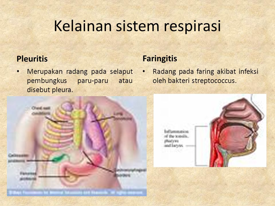 Kelainan sistem respirasi Laringitis Radang pada laring yang disebabkan oleh infeksi,terlalu banyak merokok,minum alkohol, dan terlalu banyak serak.