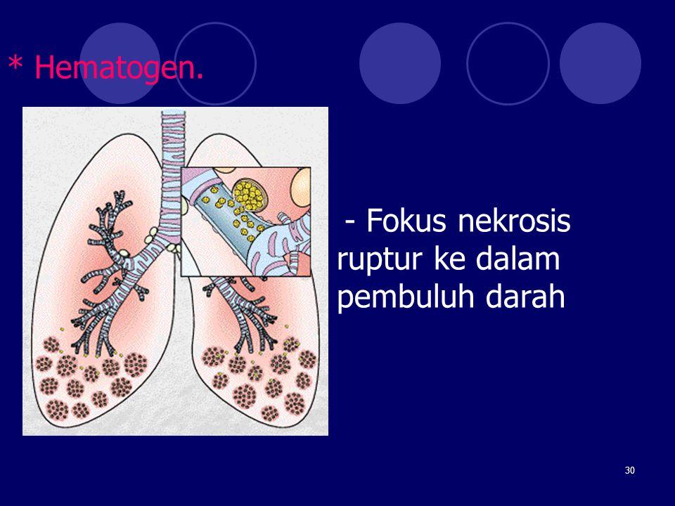 30 * Hematogen. - Fokus nekrosis ruptur ke dalam pembuluh darah
