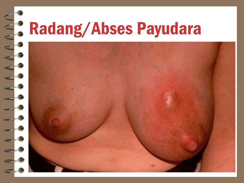 Radang/Abses Payudara