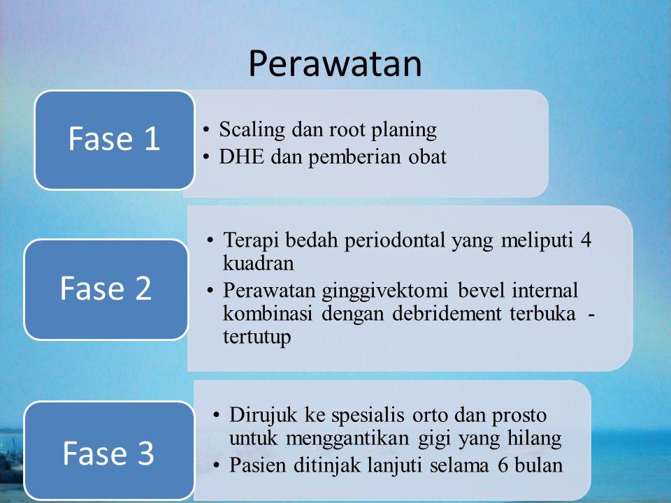 Perawatan Scaling dan root planing DHE dan pemberian obat Fase 1 Terapi bedah periodontal yang meliputi 4 kuadran Perawatan ginggivektomi bevel intern