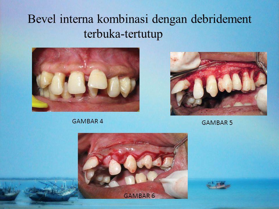 Bevel interna kombinasi dengan debridement terbuka-tertutup GAMBAR 4 GAMBAR 5 GAMBAR 6