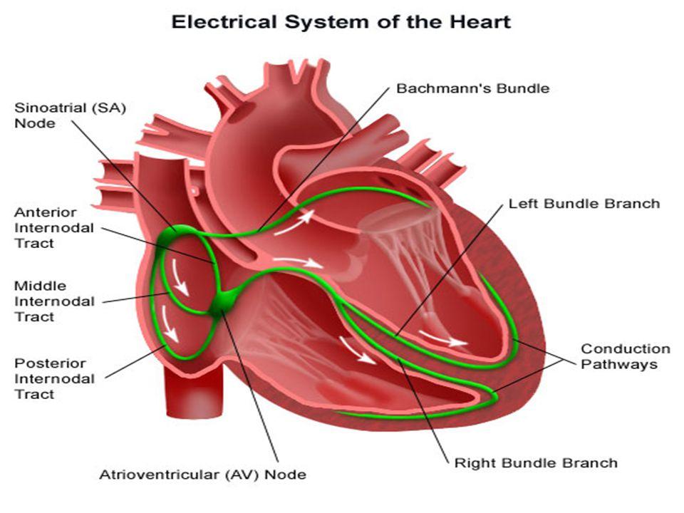 AV BLOCK DERAJAT II TIPE I (WENCHENBACH) Irama = Irama atrial teratur, Irama ventrikel tidak teratur Frekuensi (HR) = Frekuensi atrium > frekuensi ventrikel, Umumnya dalam batas normal 60 – 100 kali/menit Gelombang P = Normal, ada satu P yang tidak diikuti gelombang QRS