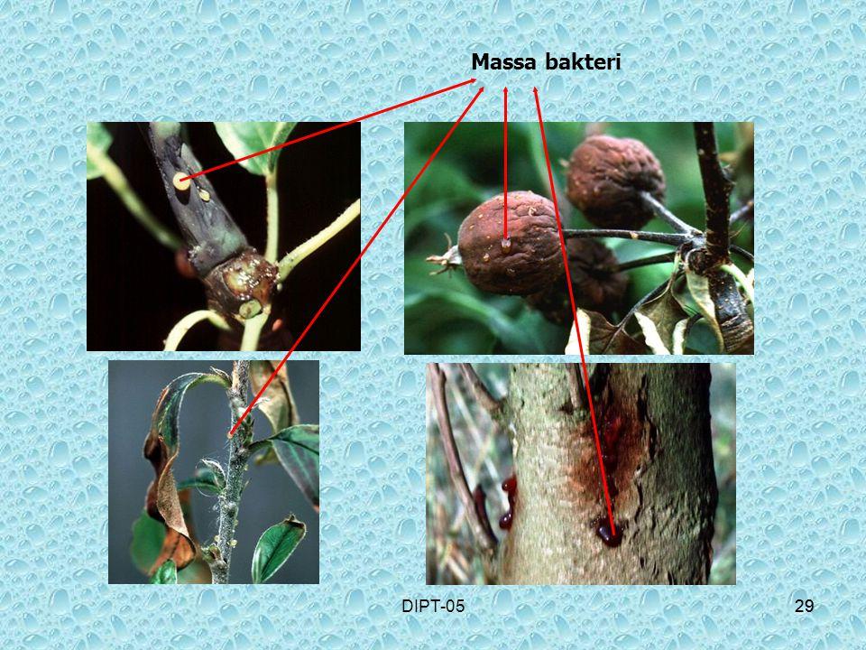 29DIPT-0529 Massa bakteri