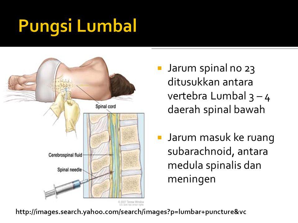  Jarum spinal no 23 ditusukkan antara vertebra Lumbal 3 – 4 daerah spinal bawah  Jarum masuk ke ruang subarachnoid, antara medula spinalis dan meningen http://images.search.yahoo.com/search/images?p=lumbar+puncture&vc