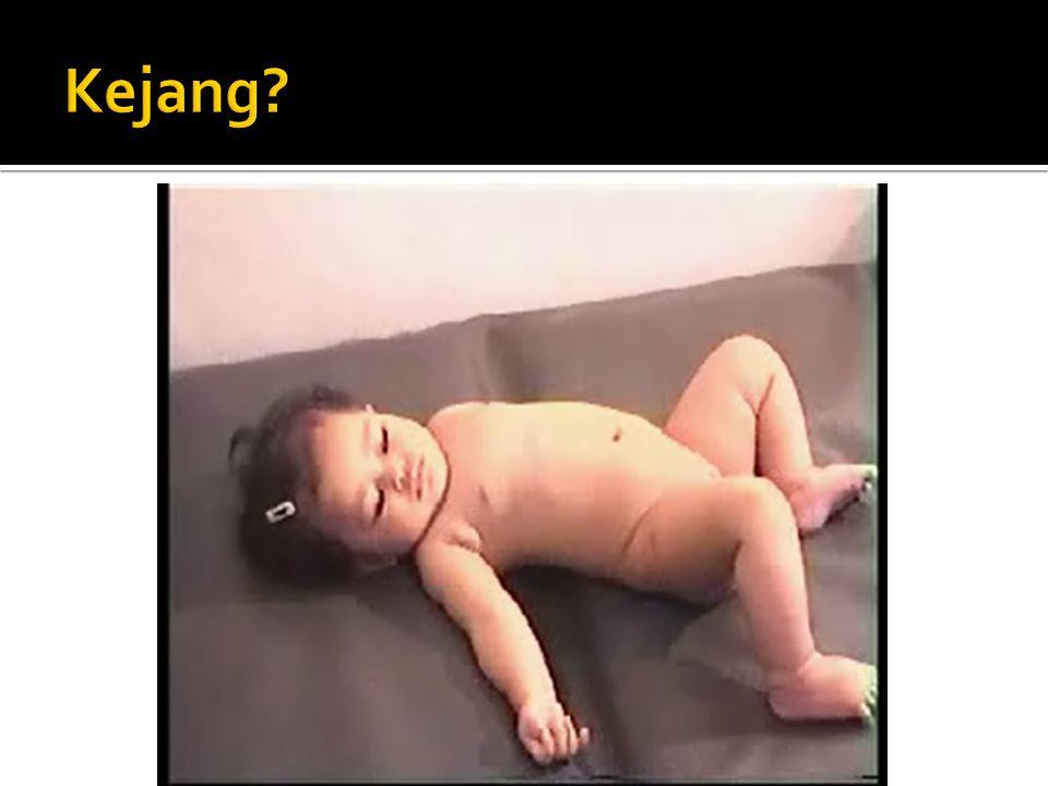  Pendekatan diagnosis kejang pada anak dimulai dari pengamatan klinis anak pasca kejang  Pendekatan diagnosis terbagi atas kejang disertai demam dan kejang tanpa demam  Pemeriksaan penunjang sesuai indikasi dan kecurigaan diagnosis  Diagnosis yang tepat menentukan prognosis pasien