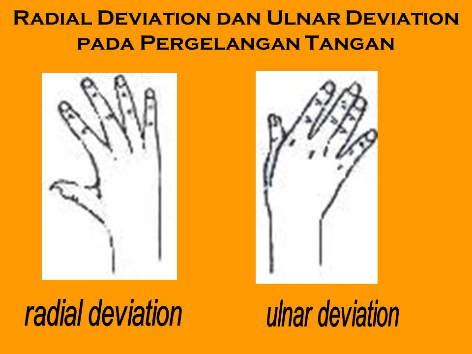 Radial Deviation dan Ulnar Deviation pada Pergelangan Tangan