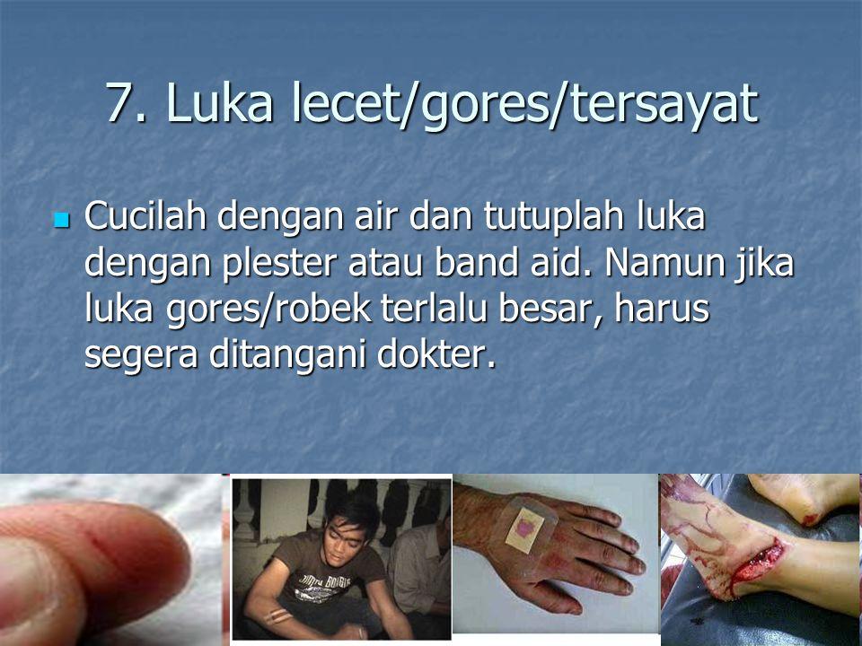7. Luka lecet/gores/tersayat Cucilah dengan air dan tutuplah luka dengan plester atau band aid. Namun jika luka gores/robek terlalu besar, harus seger
