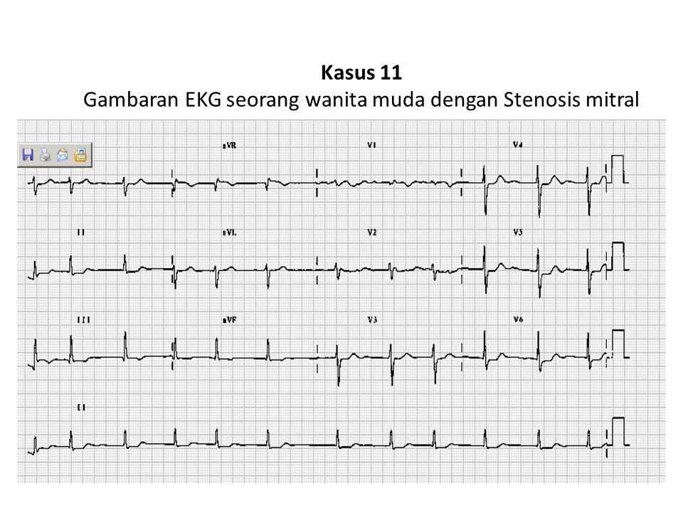 Kasus 11 Gambaran EKG seorang wanita muda dengan Stenosis mitral