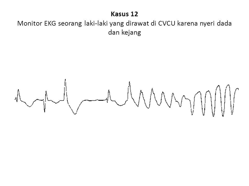 Kasus 12 Monitor EKG seorang laki-laki yang dirawat di CVCU karena nyeri dada dan kejang