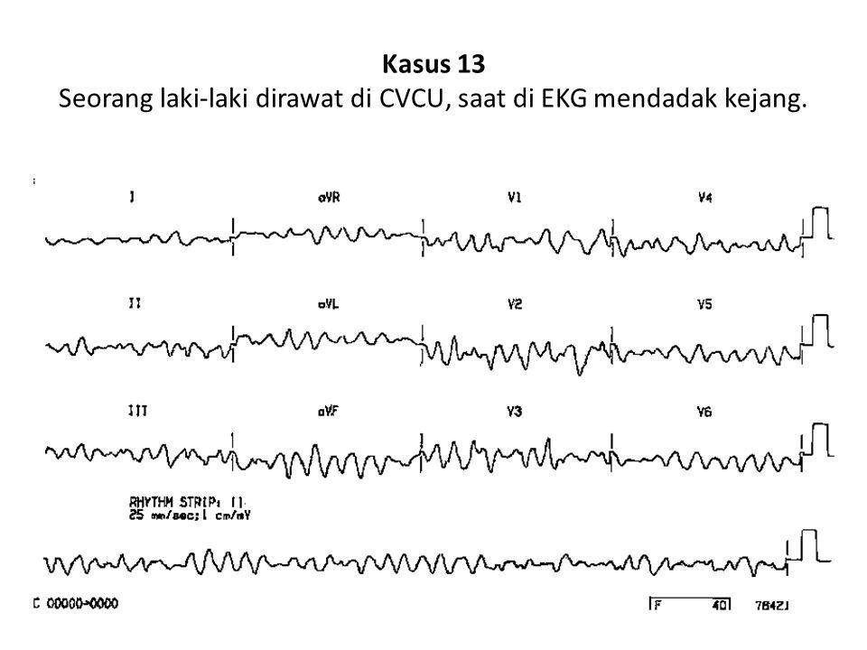 Kasus 13 Seorang laki-laki dirawat di CVCU, saat di EKG mendadak kejang.
