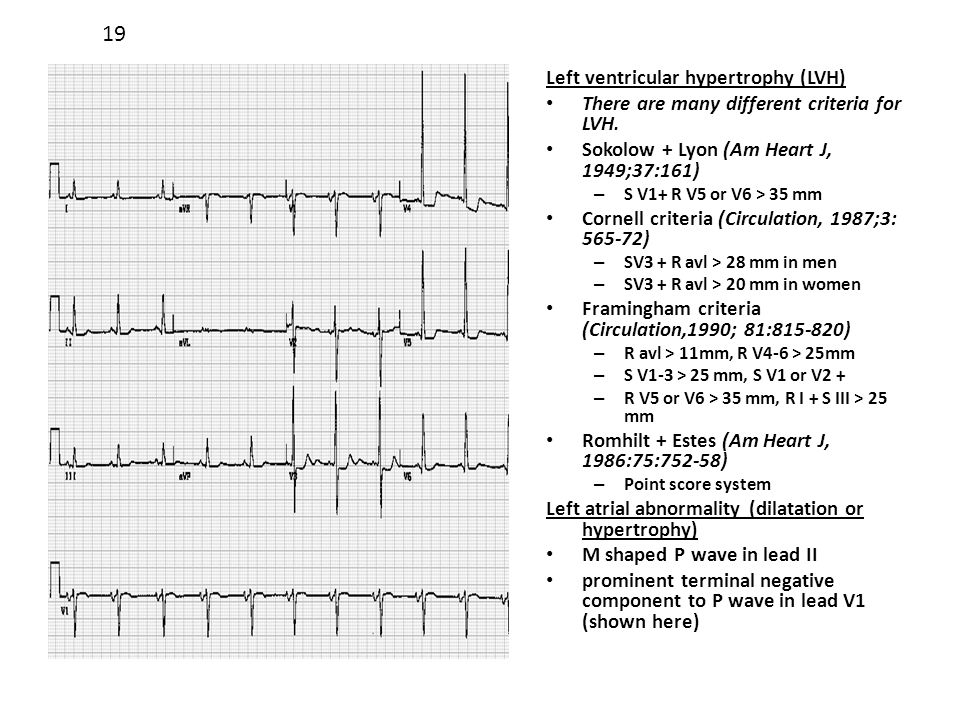 Left ventricular hypertrophy (LVH) There are many different criteria for LVH. Sokolow + Lyon (Am Heart J, 1949;37:161) – S V1+ R V5 or V6 > 35 mm Corn