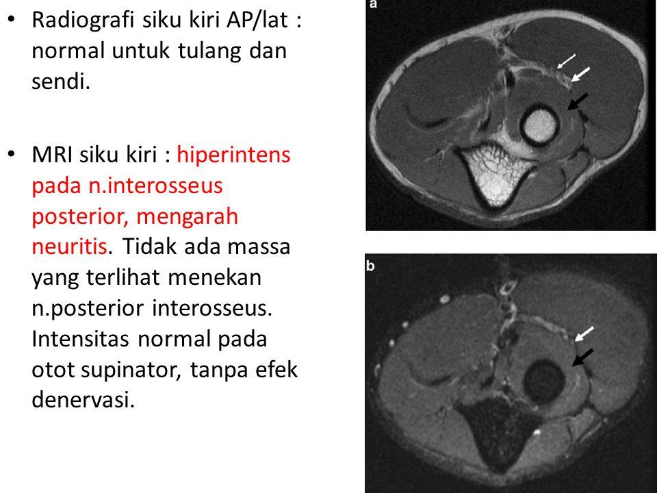 Radiografi siku kiri AP/lat : normal untuk tulang dan sendi. MRI siku kiri : hiperintens pada n.interosseus posterior, mengarah neuritis. Tidak ada ma