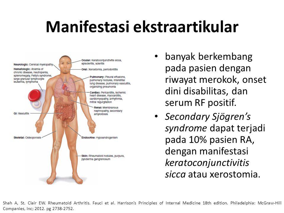 Manifestasi ekstraartikular banyak berkembang pada pasien dengan riwayat merokok, onset dini disabilitas, dan serum RF positif. Secondary Sjögren's sy
