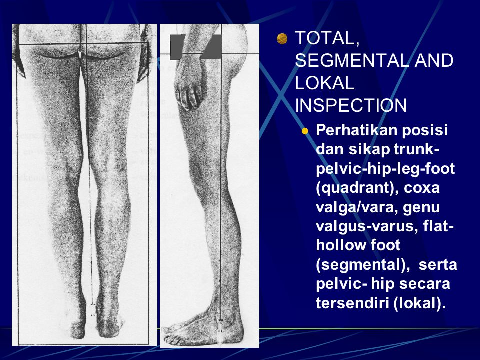 TOTAL, SEGMENTAL AND LOKAL INSPECTION Perhatikan posisi dan sikap trunk- pelvic-hip-leg-foot (quadrant), coxa valga/vara, genu valgus-varus, flat- hol