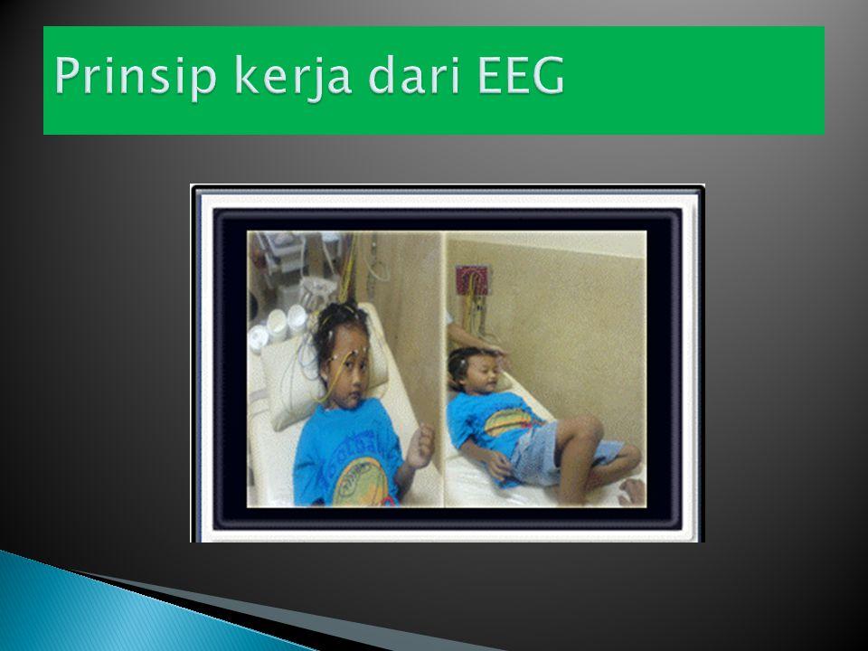 Rekaman EEG umumnya melalui elektroda yang diletakkan di kulit kepala tetapi dapat juga ditanam intra kranial.