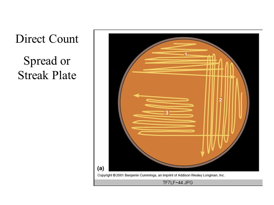Direct Count Spread or Streak Plate