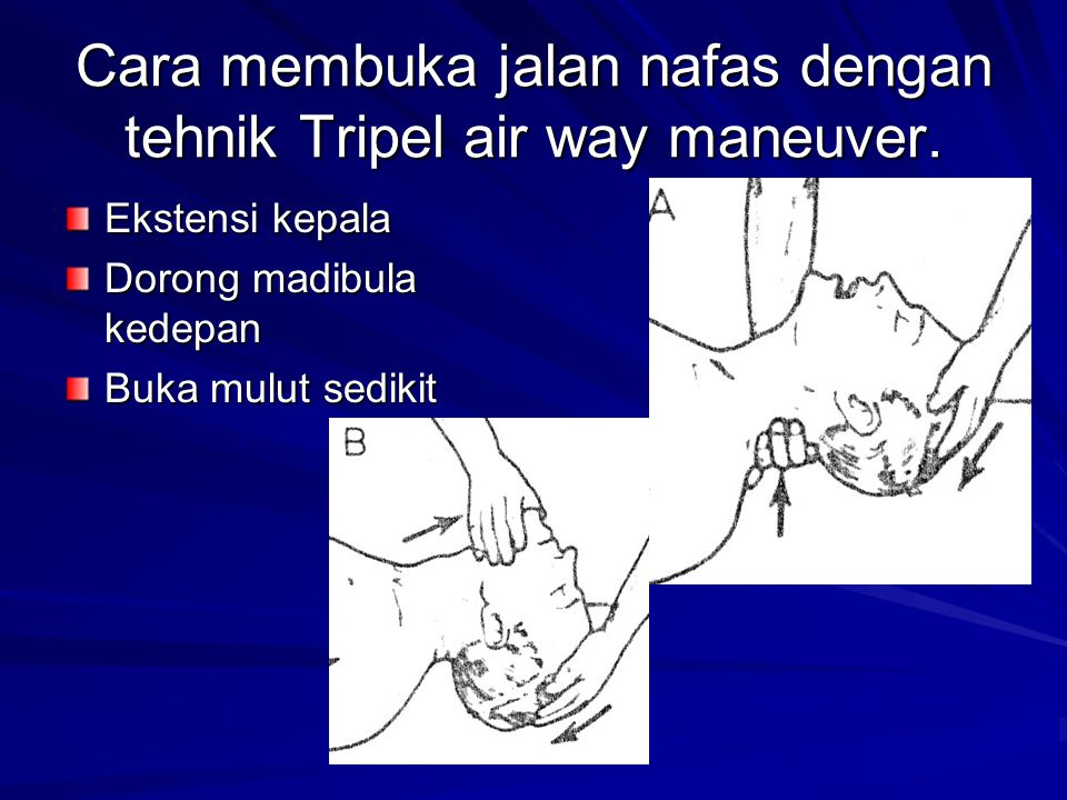 Cara membuka jalan nafas dengan tehnik Tripel air way maneuver. Ekstensi kepala Dorong madibula kedepan Buka mulut sedikit