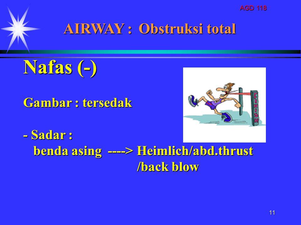 AGD 118 11 Nafas (-) Gambar : tersedak - Sadar : benda asing ----> Heimlich/abd.thrust benda asing ----> Heimlich/abd.thrust /back blow /back blow AIR