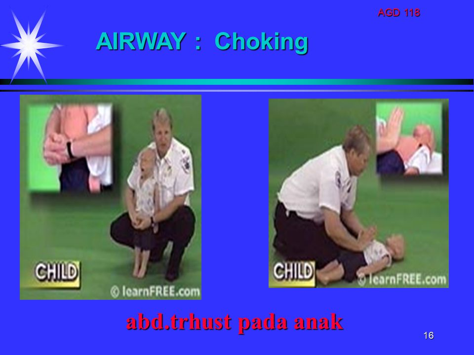 AGD 118 16 abd.trhust pada anak abd.trhust pada anak AIRWAY : Choking