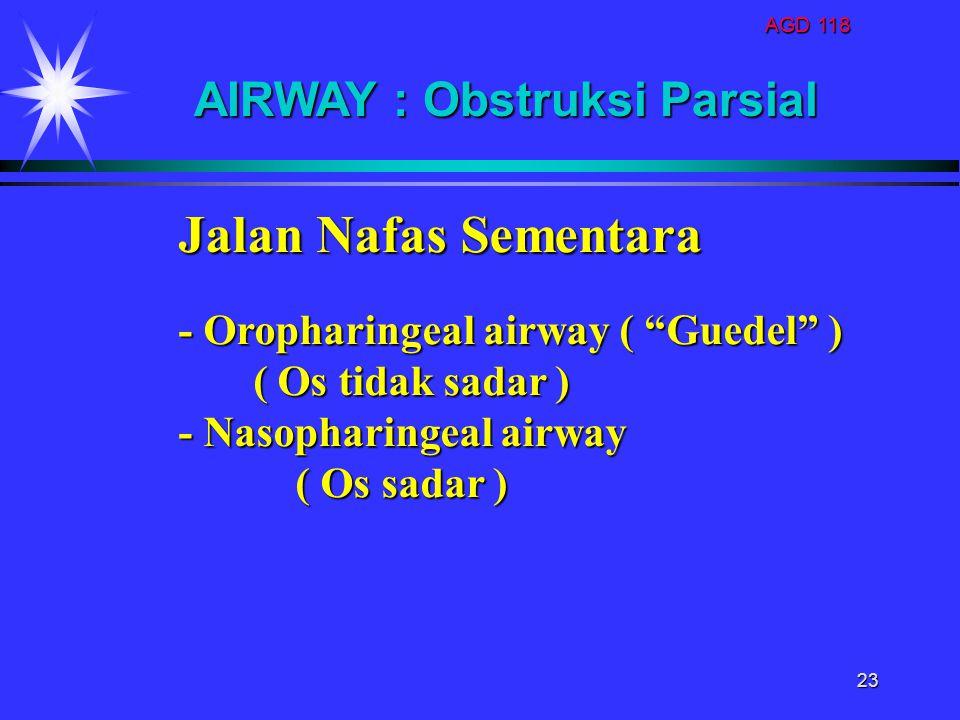 """AGD 118 23 Jalan Nafas Sementara - Oropharingeal airway ( """"Guedel"""" ) ( Os tidak sadar ) ( Os tidak sadar ) - Nasopharingeal airway ( Os sadar ) ( Os s"""