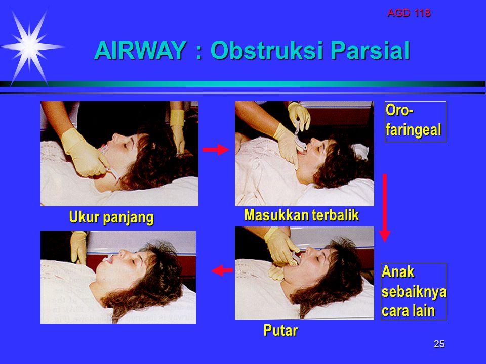 AGD 118 25 AIRWAY : Obstruksi Parsial Ukur panjang Masukkan terbalik Putar Anaksebaiknya cara lain Oro-faringeal