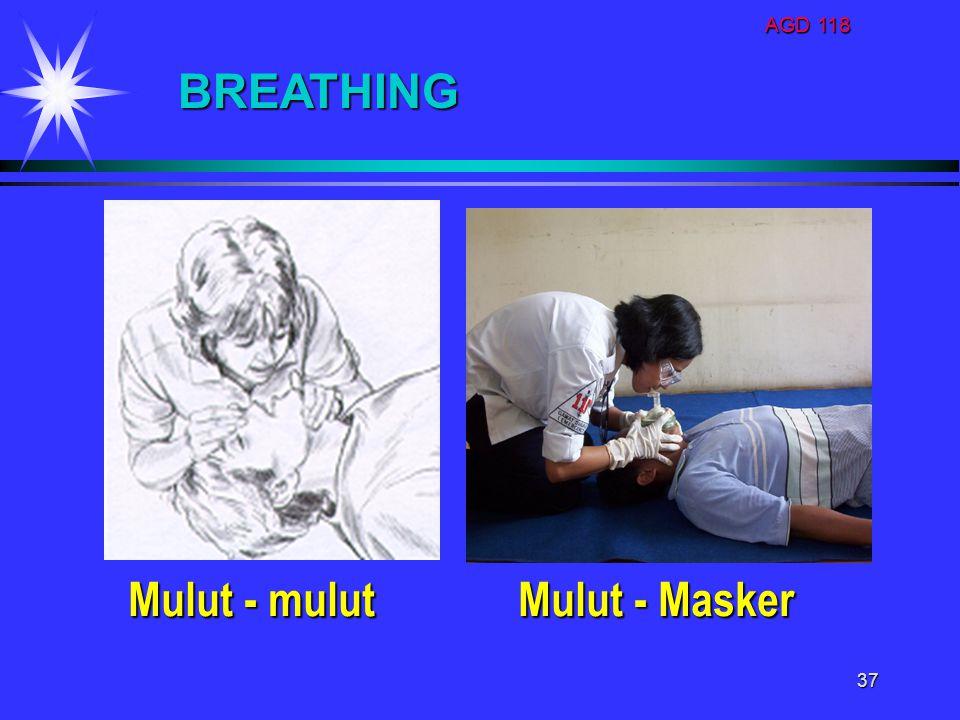 AGD 118 37 BREATHING Mulut - mulut Mulut - Masker