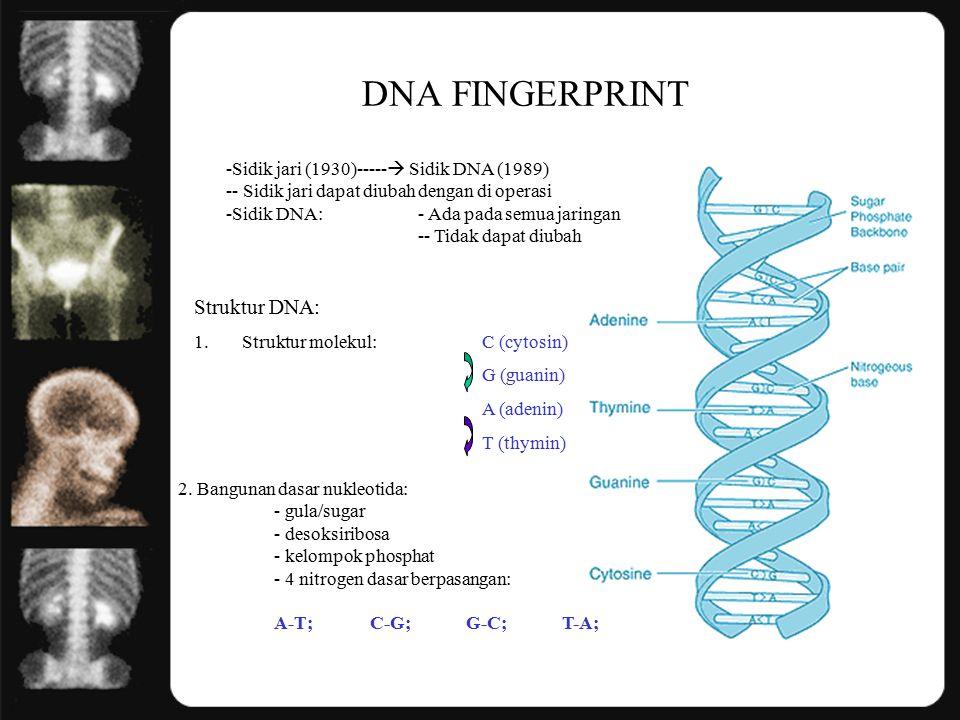DNA FINGERPRINT -Sidik jari (1930)-----  Sidik DNA (1989) -- Sidik jari dapat diubah dengan di operasi -Sidik DNA:- Ada pada semua jaringan -- Tidak dapat diubah Struktur DNA: 1.Struktur molekul: C (cytosin) G (guanin) A (adenin) T (thymin) 2.