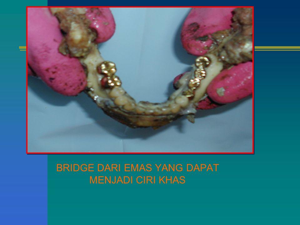 BRIDGE DARI EMAS YANG DAPAT MENJADI CIRI KHAS