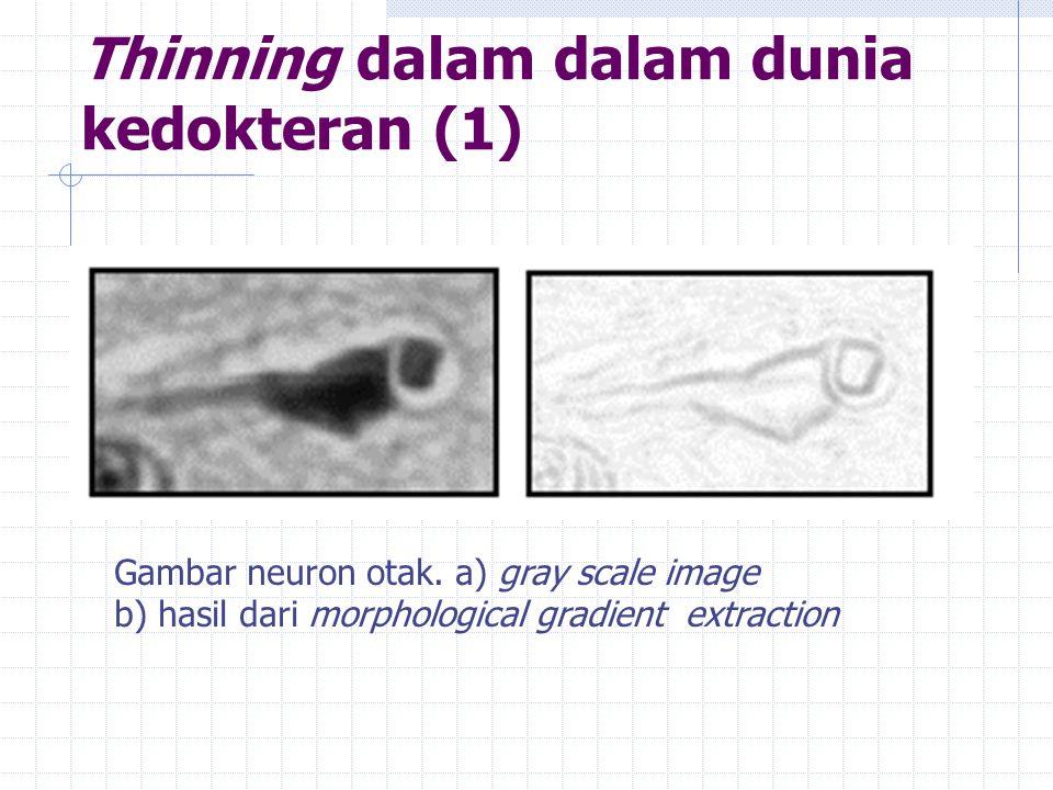 Thinning dalam dalam dunia kedokteran (1) Gambar neuron otak.
