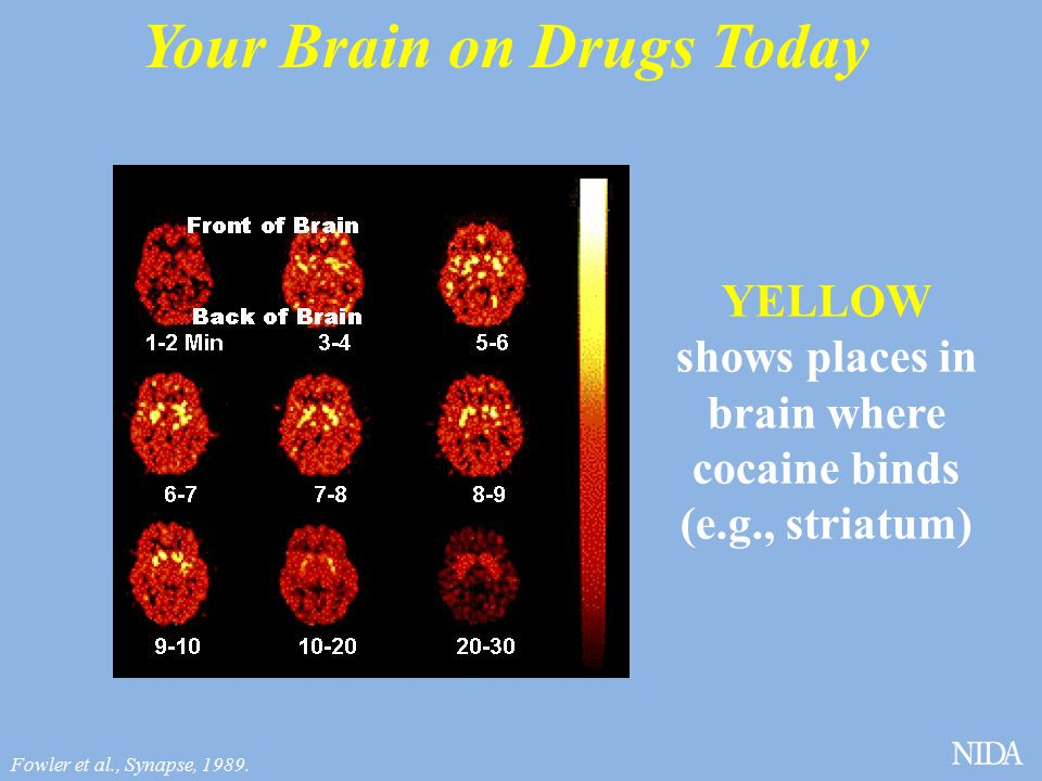Your Brain on Drugs Today YELLOW shows places in brain where cocaine binds (e.g., striatum) Fowler et al., Synapse, 1989.