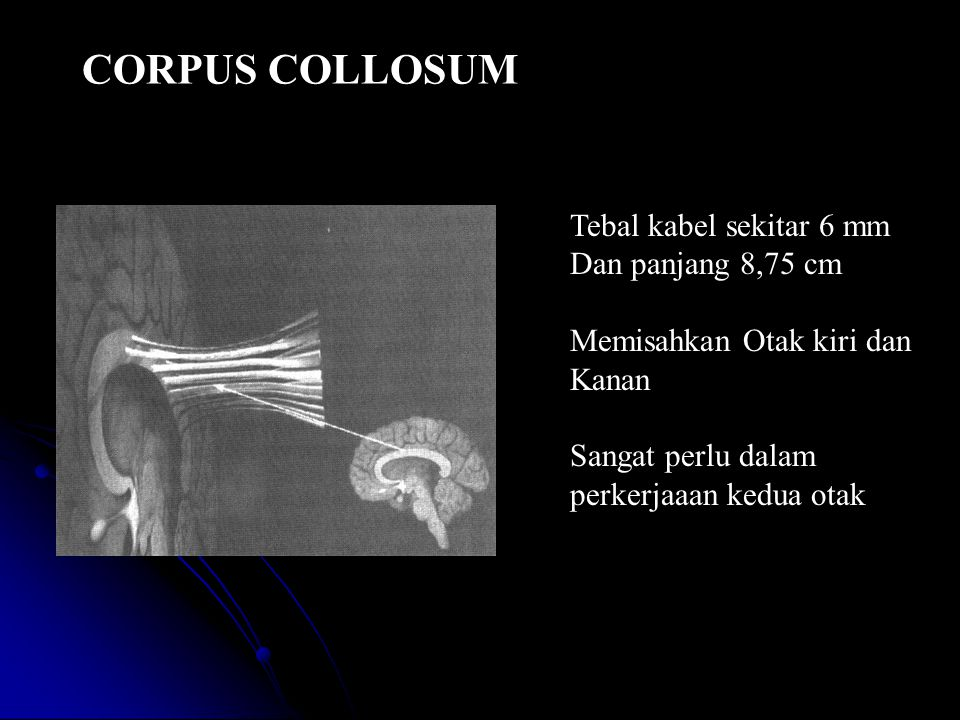 CORPUS COLLOSUM Tebal kabel sekitar 6 mm Dan panjang 8,75 cm Memisahkan Otak kiri dan Kanan Sangat perlu dalam perkerjaaan kedua otak