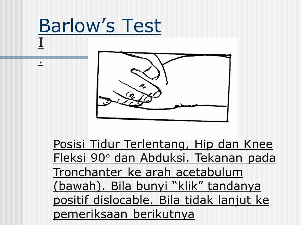 """Barlow's Test I.I. Posisi Tidur Terlentang, Hip dan Knee Fleksi 90° dan Abduksi. Tekanan pada Tronchanter ke arah acetabulum (bawah). Bila bunyi """"klik"""