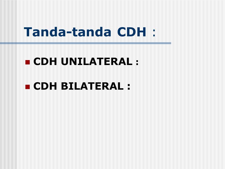 Tanda-tanda CDH : CDH UNILATERAL : CDH BILATERAL :