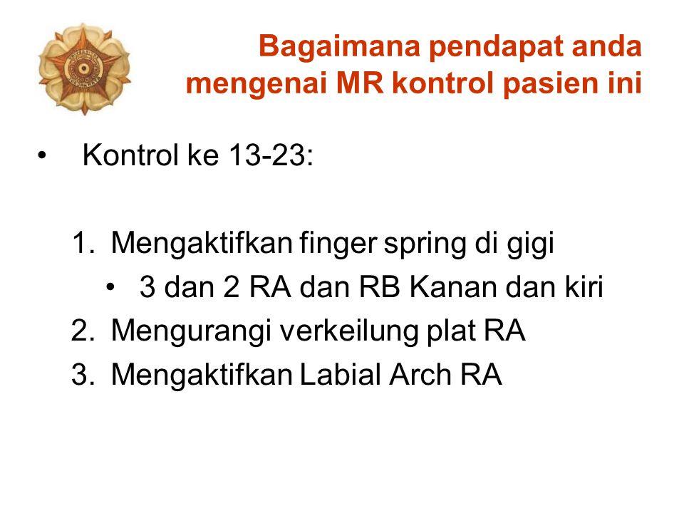 Bagaimana pendapat anda mengenai MR kontrol pasien ini Kontrol ke 13-23: 1.Mengaktifkan finger spring di gigi 3 dan 2 RA dan RB Kanan dan kiri 2.Mengurangi verkeilung plat RA 3.Mengaktifkan Labial Arch RA