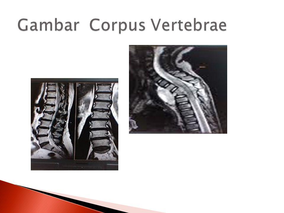  Abscess  Spine deformities  Neurologic deficits and paraplegia