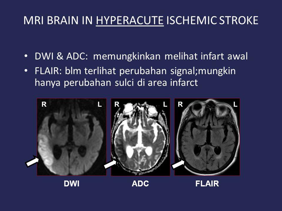 MRI BRAIN IN HYPERACUTE ISCHEMIC STROKE DWI & ADC: memungkinkan melihat infart awal FLAIR: blm terlihat perubahan signal;mungkin hanya perubahan sulci