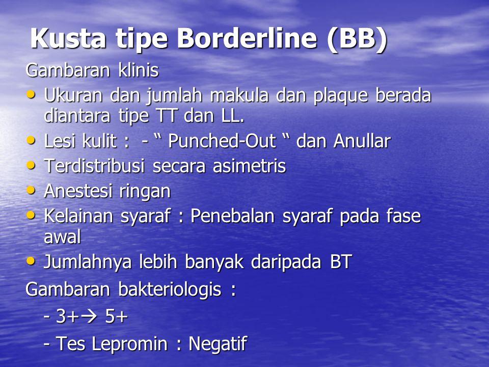 Kusta tipe Borderline (BB) Gambaran klinis Ukuran dan jumlah makula dan plaque berada diantara tipe TT dan LL.