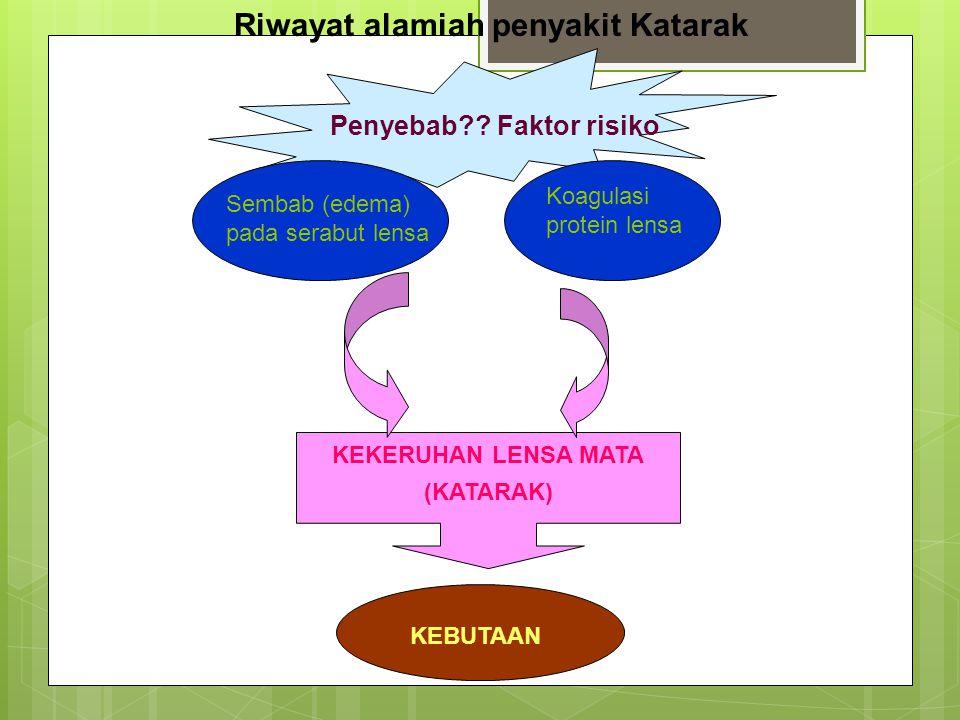 Riwayat alamiah penyakit Katarak Sembab (edema) pada serabut lensa Koagulasi protein lensa KEKERUHAN LENSA MATA (KATARAK) KEBUTAAN Penyebab?? Faktor r