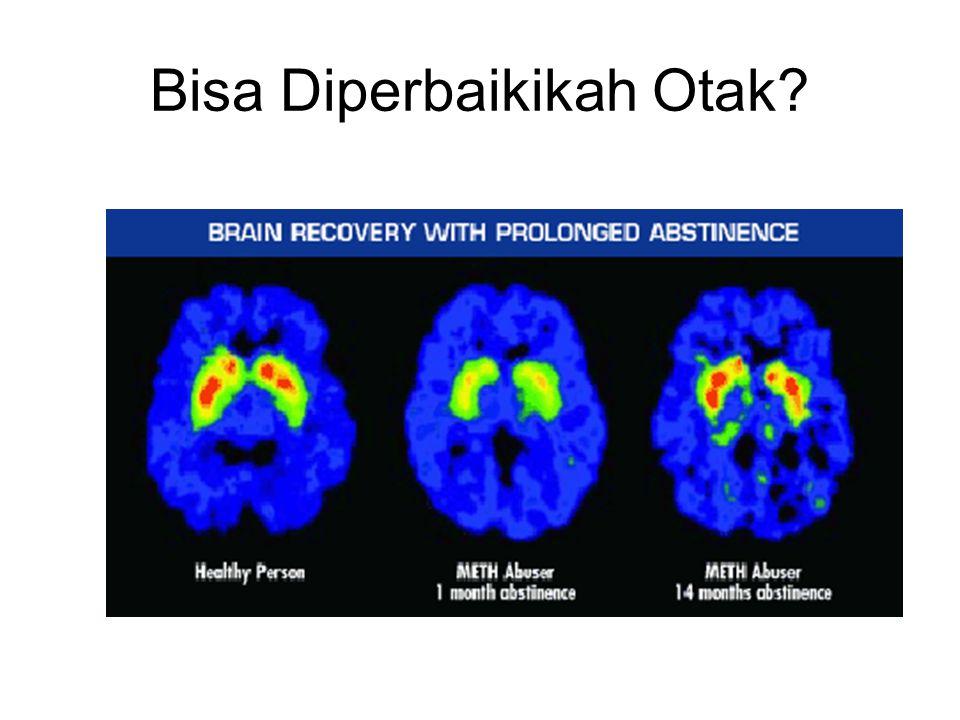 Bisa Diperbaikikah Otak?