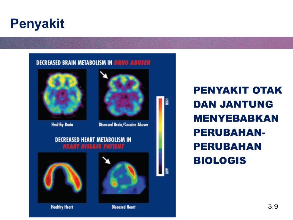 3.30 Batang Otak Mengontrol fungsi kehidupan kritikal, seperti denyut jantung, pernafasan dan tidur Batang otak