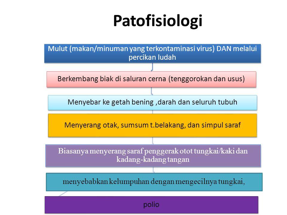 Patofisiologi Mulut (makan/minuman yang terkontaminasi virus) DAN melalui percikan ludah Berkembang biak di saluran cerna (tenggorokan dan usus) Menyebar ke getah bening,darah dan seluruh tubuh Menyerang otak, sumsum t.belakang, dan simpul saraf Biasanya menyerang saraf penggerak otot tungkai/kaki dan kadang-kadang tangan menyebabkan kelumpuhan dengan mengecilnya tungkai, polio