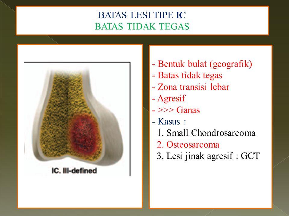 BATAS LESI TIPE IC BATAS TIDAK TEGAS - Bentuk bulat (geografik) - Batas tidak tegas - Zona transisi lebar - Agresif - >>> Ganas - Kasus : 1. Small Cho