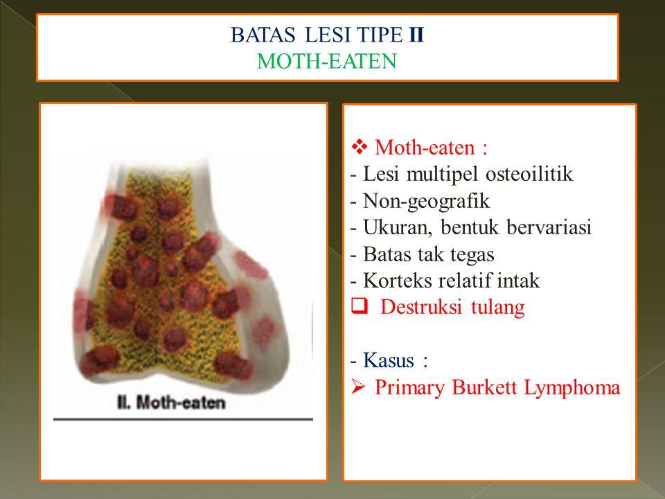 BATAS LESI TIPE II MOTH-EATEN  Moth-eaten : - Lesi multipel osteoilitik - Non-geografik - Ukuran, bentuk bervariasi - Batas tak tegas - Korteks relat