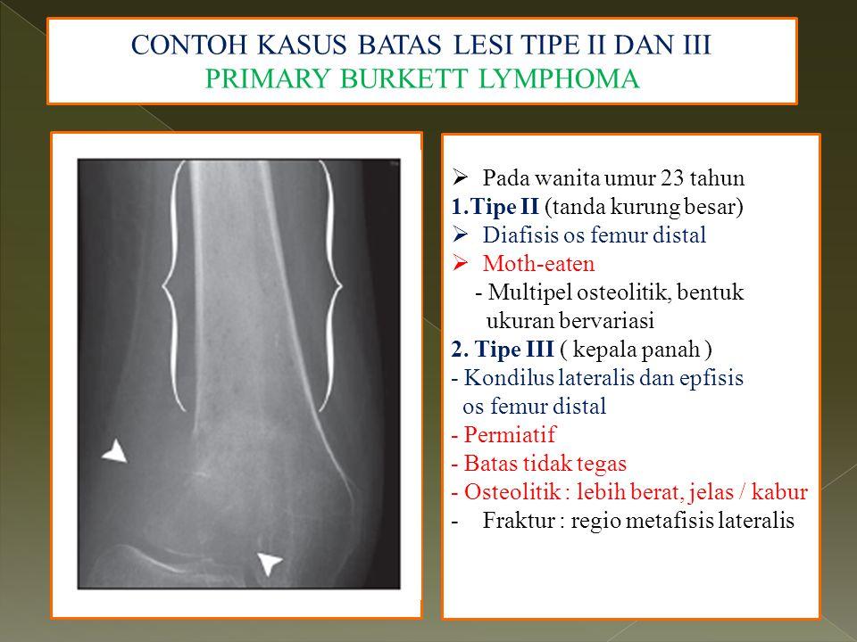 CONTOH KASUS BATAS LESI TIPE II DAN III PRIMARY BURKETT LYMPHOMA  Pada wanita umur 23 tahun 1.Tipe II (tanda kurung besar)  Diafisis os femur distal