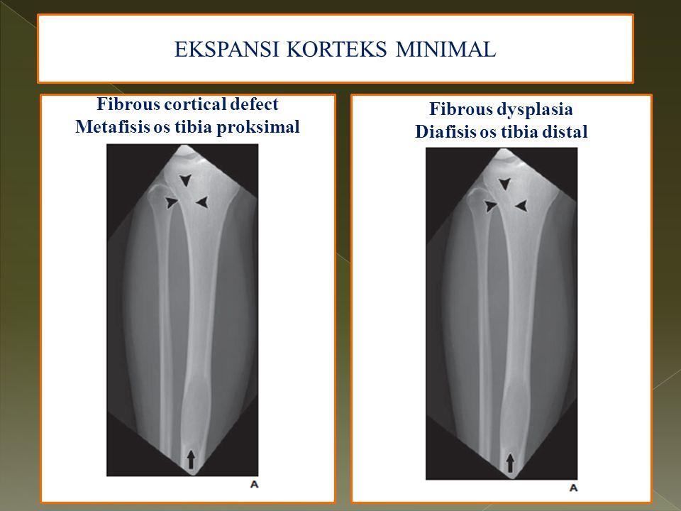 Fibrous cortical defect Metafisis os tibia proksimal EKSPANSI KORTEKS MINIMAL Fibrous dysplasia Diafisis os tibia distal