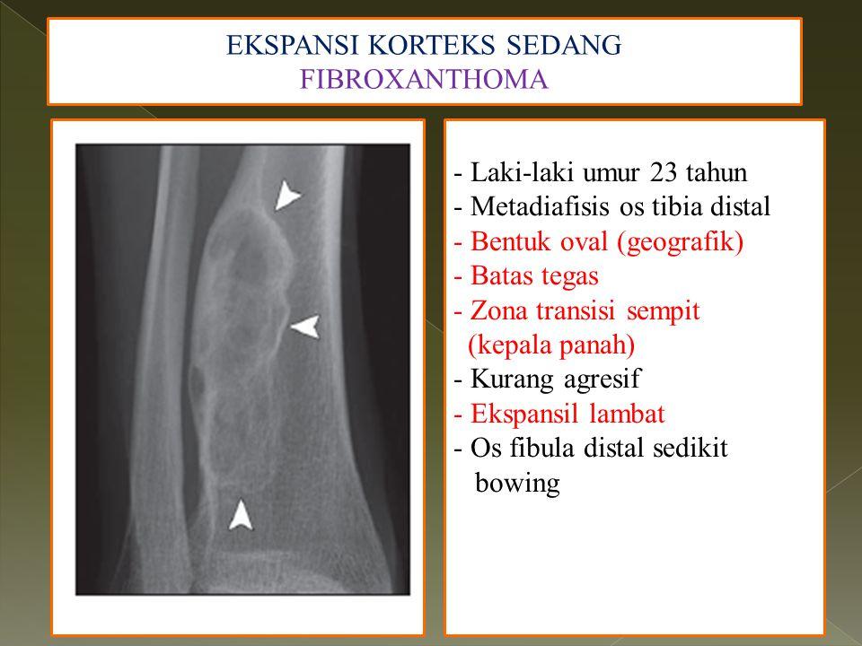 EKSPANSI KORTEKS SEDANG FIBROXANTHOMA - Laki-laki umur 23 tahun - Metadiafisis os tibia distal - Bentuk oval (geografik) - Batas tegas - Zona transisi