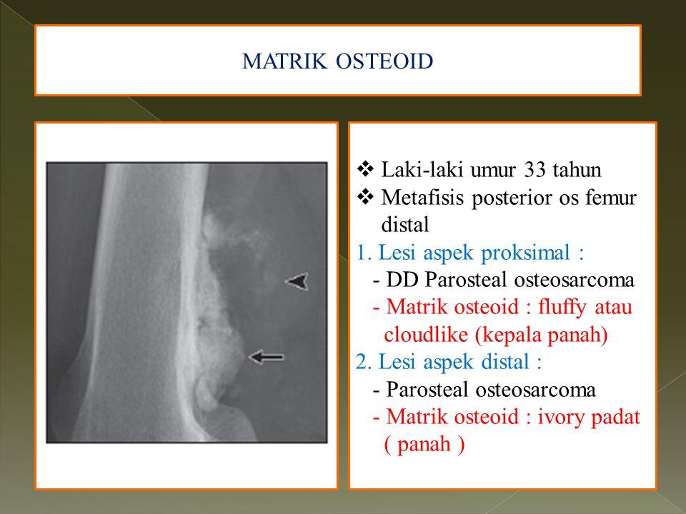 MATRIK OSTEOID  Laki-laki umur 33 tahun  Metafisis posterior os femur distal 1. Lesi aspek proksimal : - DD Parosteal osteosarcoma - Matrik osteoid